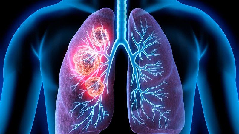 患者多數不抽煙!肺腺癌的6大症狀 | Heho健康